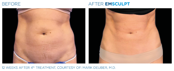 Emsculpt Treatment Results