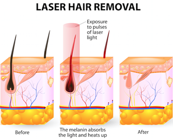 laser hair removal morgantown wv