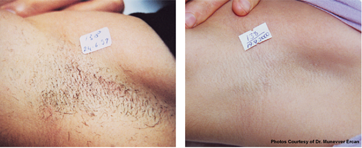 tattoo lightening does laser tattoo removal cream work ...