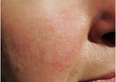 Rosacea Symptoms and Treatment