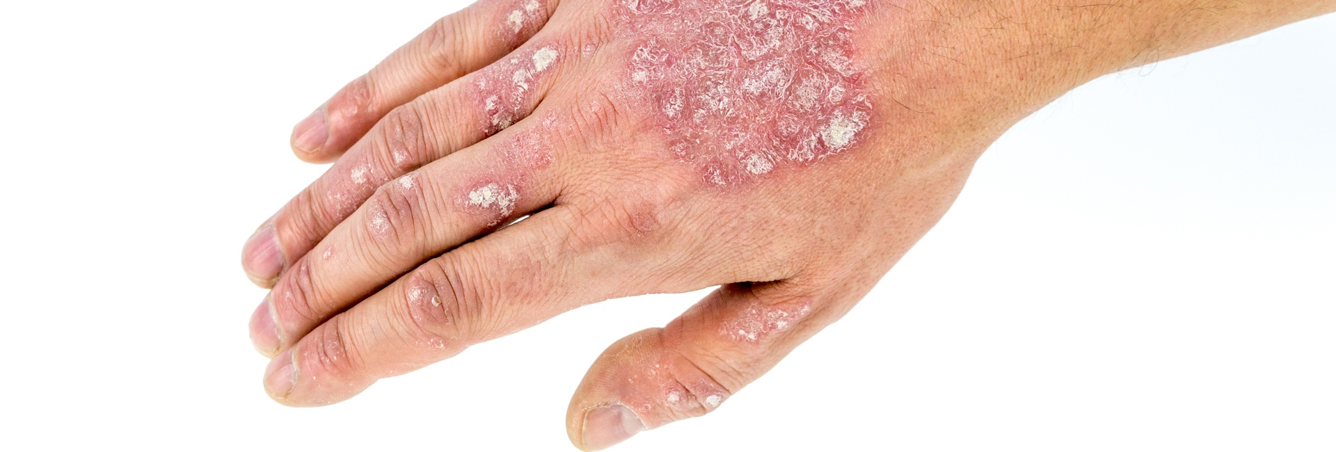 Psoriasis Treatments: What Can Cause it and Can You Prevent it