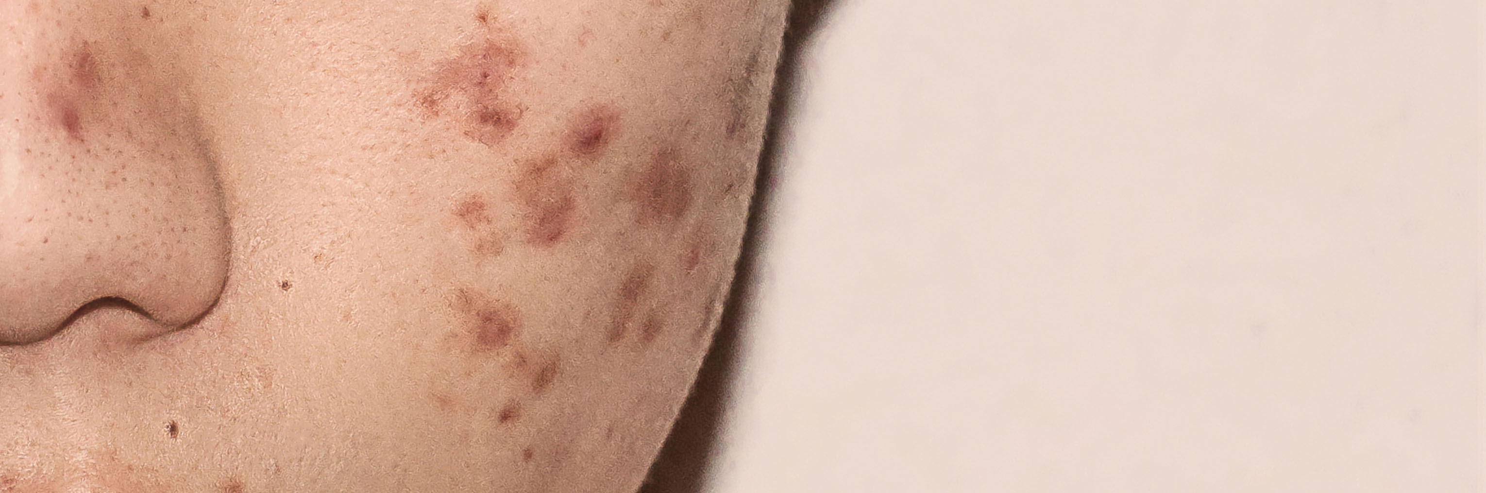 Should I Use Accutane for Severe Acne?