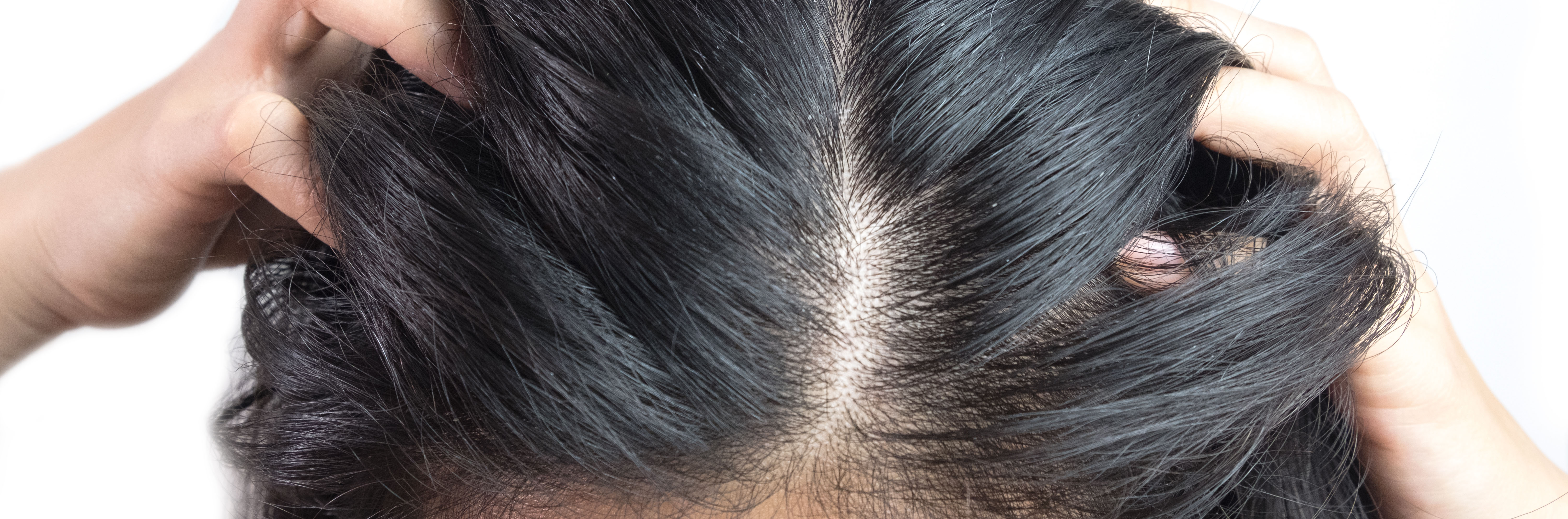 Psoriasis and Hair Loss: Is it Connected