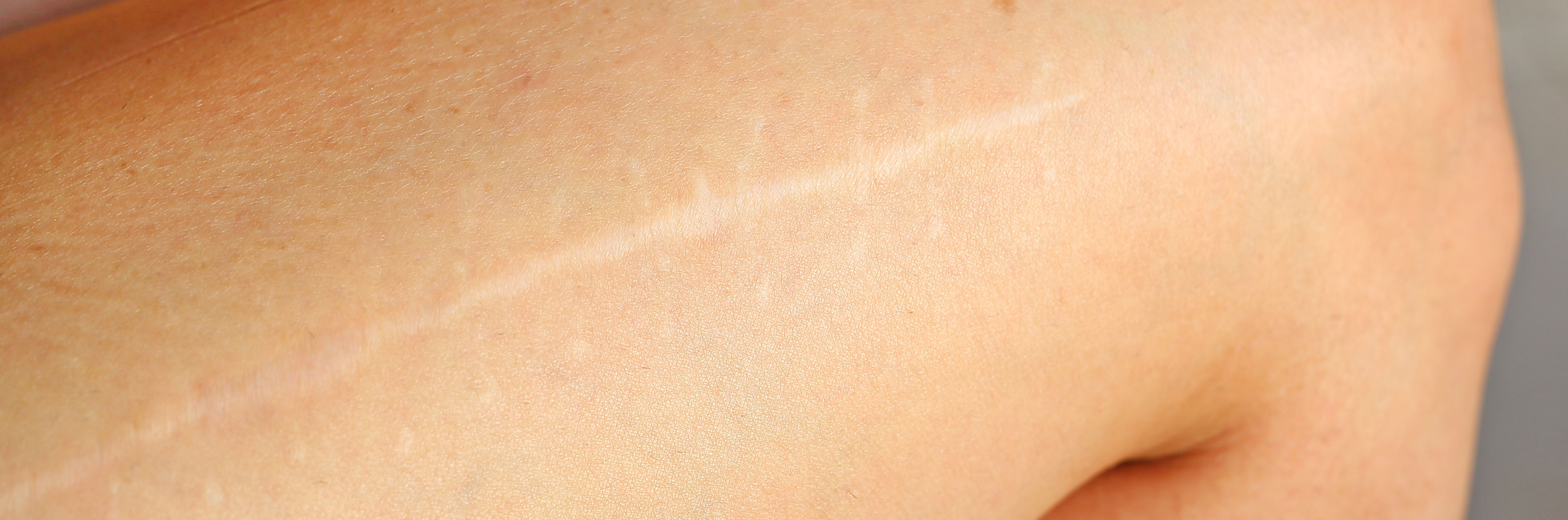 Laser Treatments: Not Just for Hair Reduction