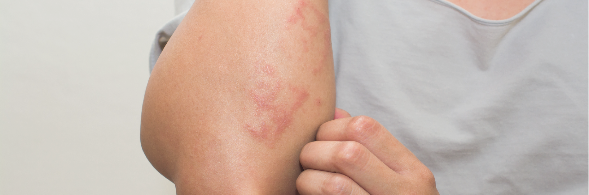 Rashes Are Not All Alike