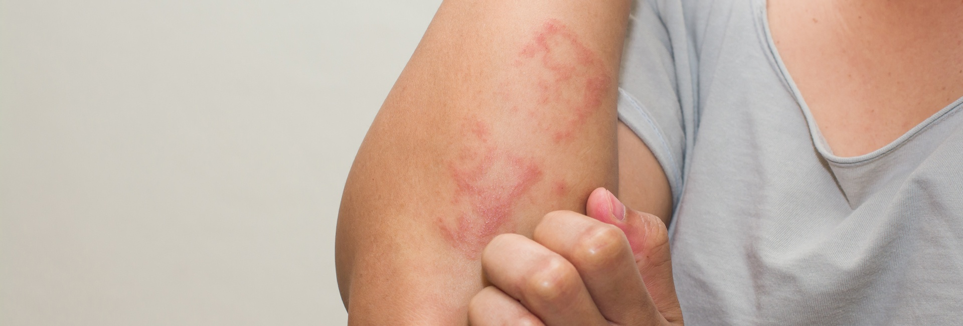 What is Eczema? Can Eczema be Treated?